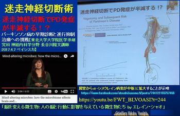 迷走神経切断-パーキンソン病.JPG